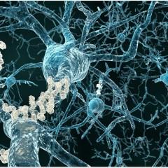 Τί είναι η νόσος Alzheimer(NA) και πώς εκδηλώνεται;
