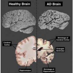 Συγχορήγηση βιταμινών Β και ατροφία εγκεφάλου
